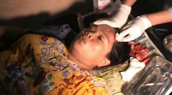 Pemilik Rumah Mengalami Luka di Kepala Setelah Diserang Perampok