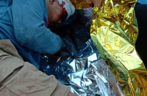 Pendaki terjatuh di cadas Gunung Marapi dan mengalami luka-luka