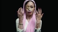 Foto Asghar Khamseh tentang korban serangan asam keras.